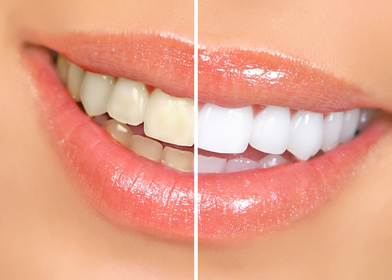 Teeth Whitening Florissant, MO